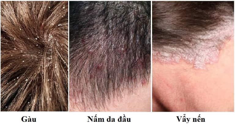 Cách phân biệt Nấm da đầu - Gàu - vảy nến